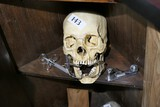 Faux skull with mouth opener, other medical devices